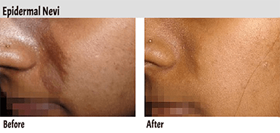 Spectra Laser for epidermal nevi