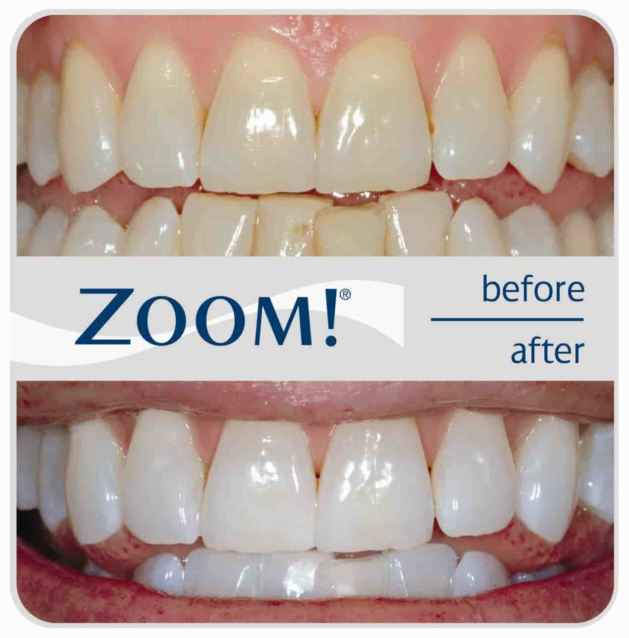 z00m-befor-after-teethwhitening-doha-qatar